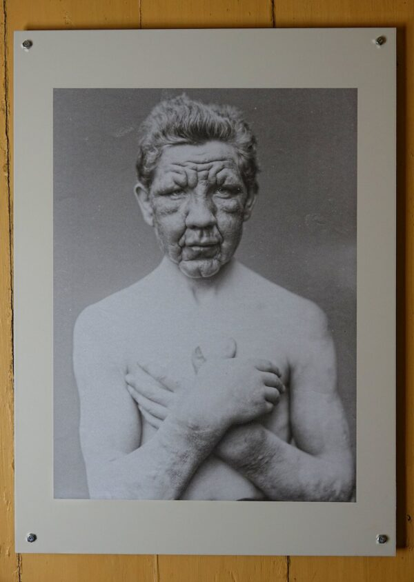 Photo of leprosy victim from Bergen, Norway.